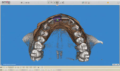 The occlusal view of the planning with wax-up.