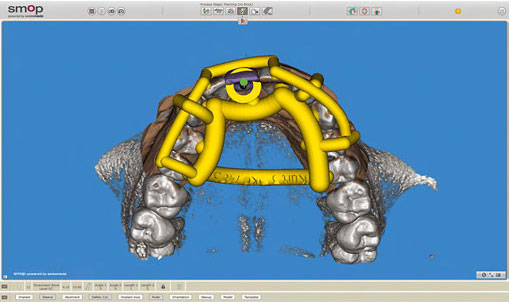 The virtual splint design is released for fabrication.